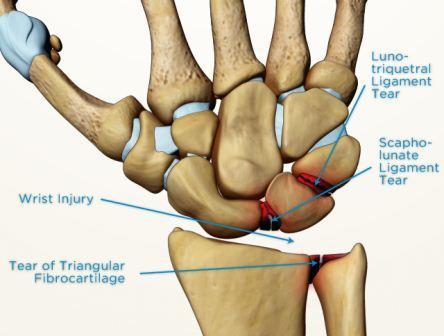 192 Scapholunate Ligament Injury