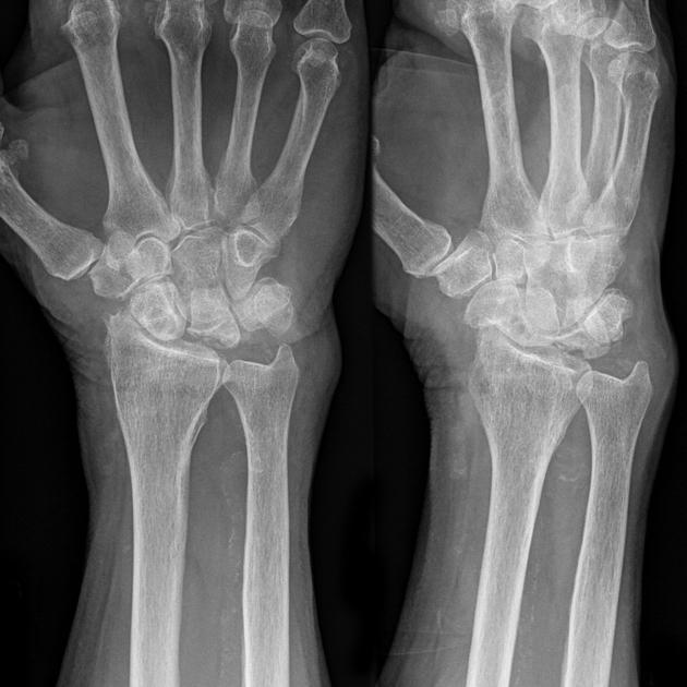 Kienbock's disease - Melbourne Hand Surgery