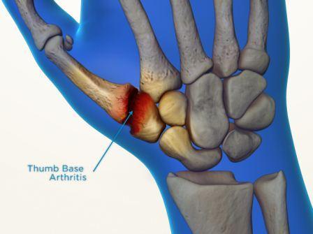 Basal Joint Arthritis Melbourne Hand Surgery